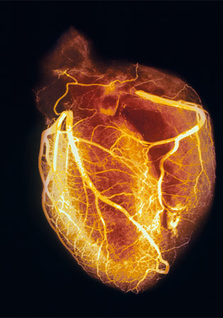 X-Ray Angiography and Heart Disease