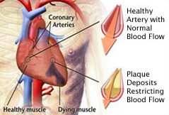 L-Arginine V Heart Disease